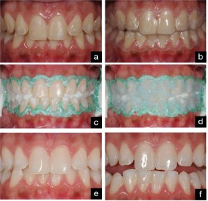 izgled-zuba