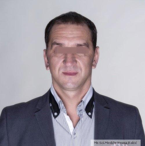 Podizanje lica i vrata (Face lifting )