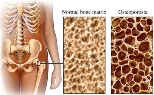 Gustina kostiju u starosti i dizanje tegova