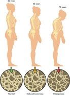 Osteoporoza – bolest dama zrele životne dobi