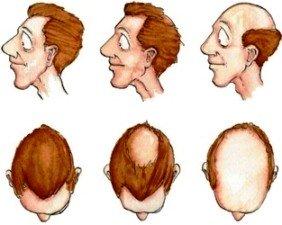Gubitak kose - Alopecia androgenetica