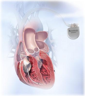 Resinhronizaciona terapija srčane insuficijencije