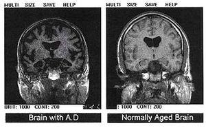 Alchajmerova bolest najčešći oblik demencije