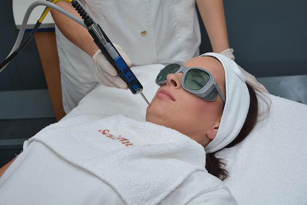Lasersko uklanjanje crvenila kože i pigmentnih promena