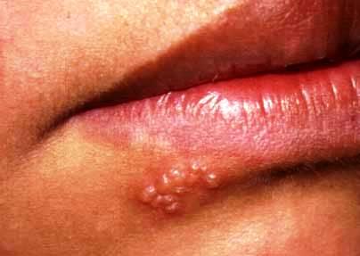 Herpes labialis - groznica na usnama
