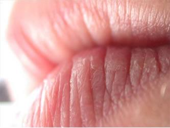 Ispucale usne