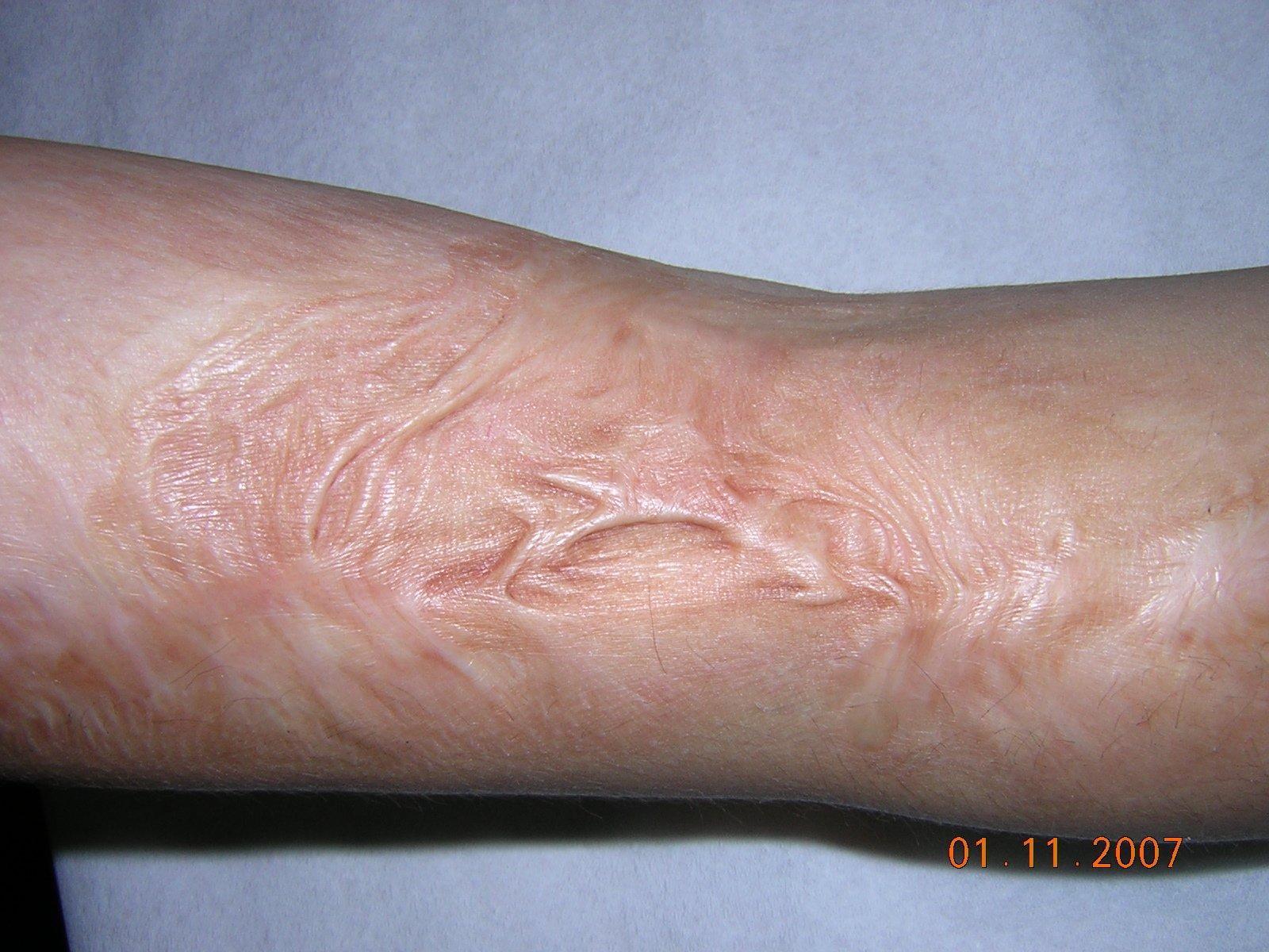 Šta je ožiljak, lečenje, operativne i neoperativne metode