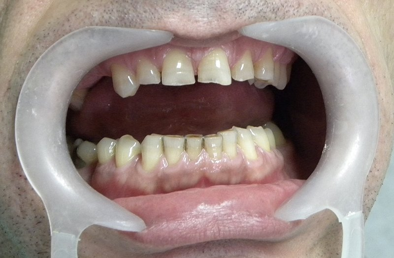 Bruksizam - Škripanje zubima