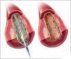 Ugradnja koronarnog stenta - procedura koja je zamenila operacije na koronarnim arterijama