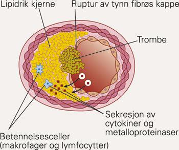 ACE inhibitori u prevenciji ateroskleroze, infarkta i šloga