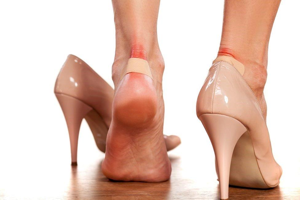 Visoke potpetice, štikle i stopala