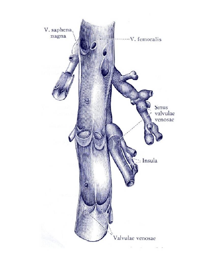 varicoza unui pelvis mic în timpul exercițiului de sarcină