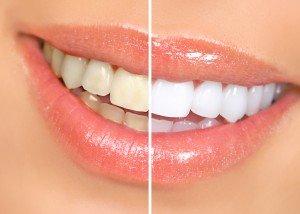 Savremene metode izbeljivanja zuba