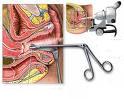 Kolposkopija, pravovremena dijagnoza korak bliže rešenju problema