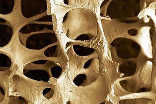 Osteoporoza - prevencija, dijagnostika i lečenje