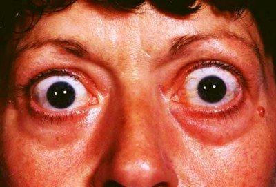 Hipertireoza - šta je, kako se prepoznaje i dijagnostikuje