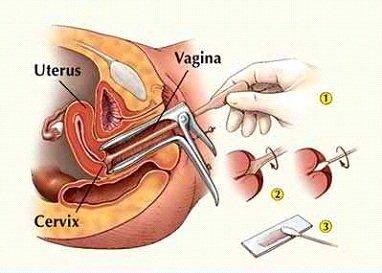 Rak grlića materice je potpuno izlečiv