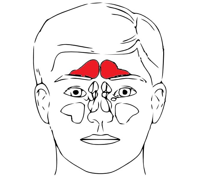 Lečenje sinusa – simptomi i metode