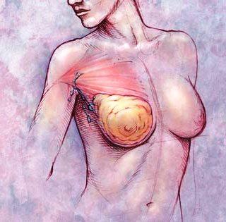 Bolesti dojke