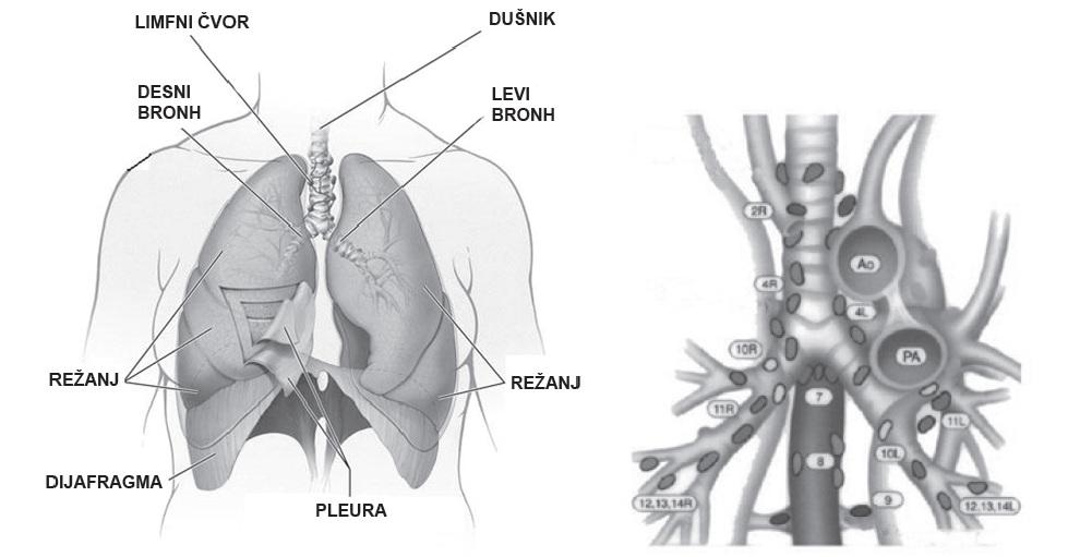 Radioterapija tumora pluća
