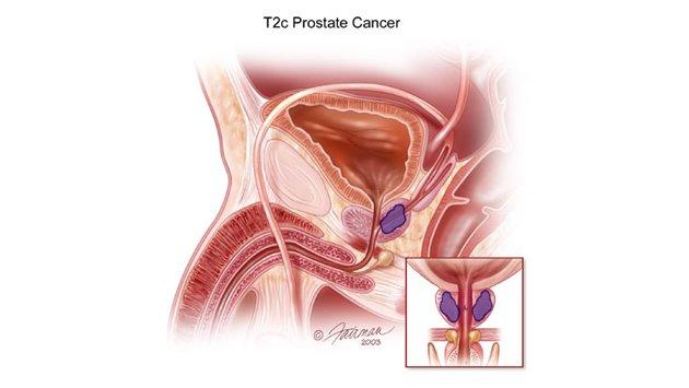 Debljina doprinosi progresiji karcinoma prostate