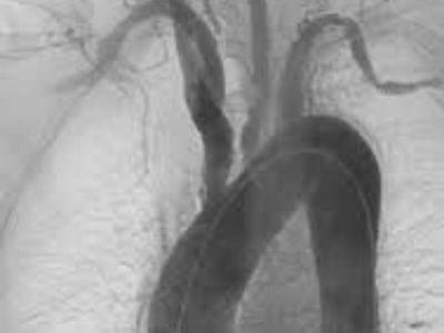 Takajašu bolest predstavlja upalni proces koji zahvata zidove aorte i njenih grana, nepoznate etiologij. Češće se javlja kod osoba ženskog pola, starosti od 15 do 30 godina.