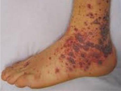 Vaskulitis predstavlja kliničko - patološki proces koji se karakteriše inflamacijom (zapaljenjem) i nekrozom (izumiranje) krvnih sudova. Patološkim procesom je obično kompromitovan lumen krvnih sudova - arterija, arteriola, kapilara i venula.