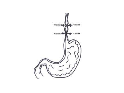 Akutni difuzni spazmi jednjaka spadaju u poremećaje hipermotiliteta jednjaka. Za vreme hipermotiliteta jednjaka se odigrava iznenadni difuzni grč jednjaka ili takođe iznenadni grč kardije (početni deo želuca).