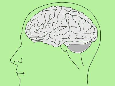 Epilepsija je hronično neurološko oboljenje koje se karakteriše spontanim ponavljanjem epileptičkih napada. Epileptički napad može da se javi kod bolesnika sa epilepsijom, kao i kod osoba koje nemaju epilepsiju, usled metaboličkih ili toksičnih faktora, apstinencijalnog alkoholnog sindroma, febrilnosti, infekcije, elektro-šoka, kao zbog dejstva mnogih drugih štetnih noksi.