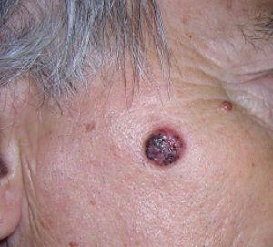 Maligni tumori kože