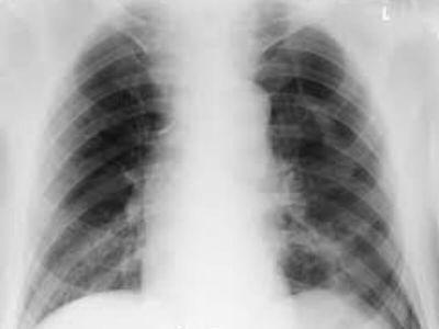 Pneumotoraks podrazumeva nakupljanje vazduha u pleuralnoj šupljini koje nastaje kao posledica prekida kontinuiteta visceralne ili parijetalne pleure (listova plućne maramice). Uzroci su različiti.
