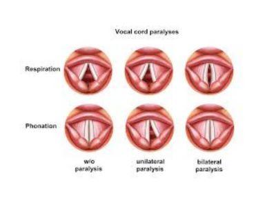 Pareze mišića larinksa predstavljaju slabljenje tonusa pojedinih ili grupe mišića, pod pretpostavkom da je inervacija očuvana.