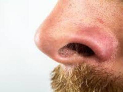 Sklerom spada u specifična oboljenja sluzokože nosa. Najčešće nastaje kod zemljoradnika i radnika koji žive u lošim higijenskim i ekonomskim uslovima.