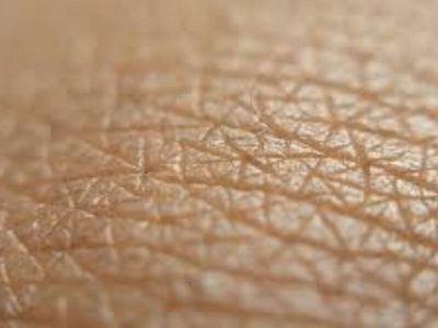Melanom kože je maligna bolest, tumor porekla ćelija melanocita. Pročitajte koja su najčešća pitanja u vezi sa melanomom.