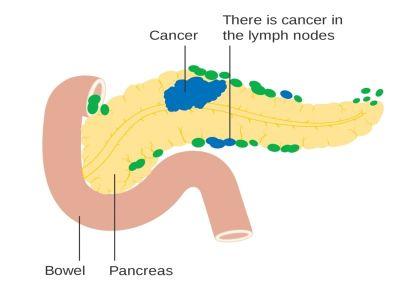 Tumori gušterače (pankreasa) se mogu podeliti u egzokrine i endokrine. Endokrini su najčešće smešteni u repu ili telu gušterače i mogu da narastu i do 10 cm, pa i više pre nego što se pojave bolovi i mogućnost da se palpiraju. Javljaju se i gubitak telesne težine i uvećana slezina.