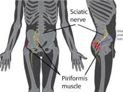 Išijas je je oboljenje koje nastaje oštećenjem kičmenih korenova izazvanim prolapsom lumbalnih intervertebralnih diskusa. Veliki socio - medicinski značaj išijasa proističe iz činjenice da je to jedan od veoma čestih uzroka radne nesposobnosti, odnosno bolovanja.