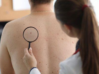 Melanom (rak kože) je izlečiv ako se otkrije na vreme. Pročitajte najčešća pitanja i odgovore u vezi sa melanomom, na koja odgovara dr Dubravka Đerić.