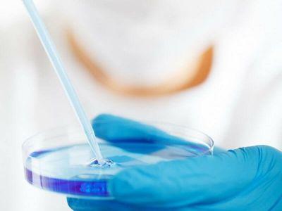 Sedimentacija eritrocita (SE) je jedna od prvih, ako ne i prva laboratorijska analiza krvi koja se počela koristiti u savremenoj medicini.