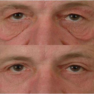 Podizanje očnih kapaka pre i posle