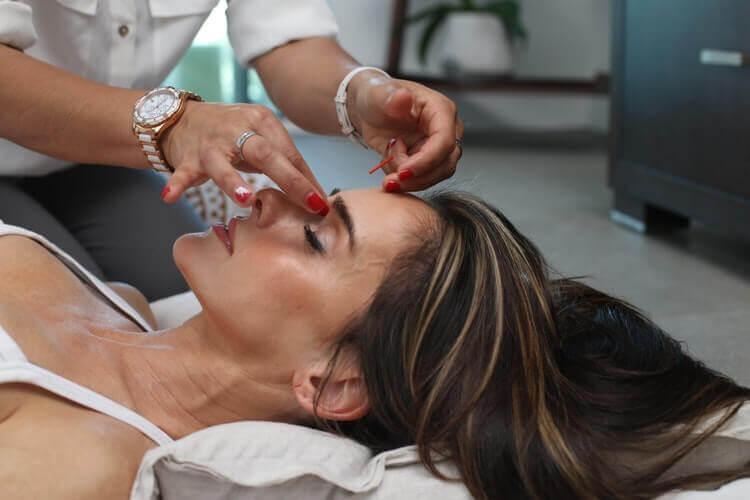 Estetska akupunktura lica