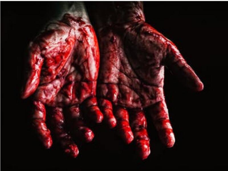 Bez obzira koliko rana izgleda bezazleno neophodno je da se povređena osoba javi svom lekaru kako bi dobila odgovarajuća uputstva. Veće rane, rane koje krvare, zahtevaju hitno zaustavljanje krvarenja i pregled hirurga.