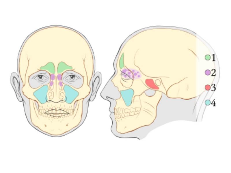 Upala sinusa (sinusitis ili rinosinuzitis)