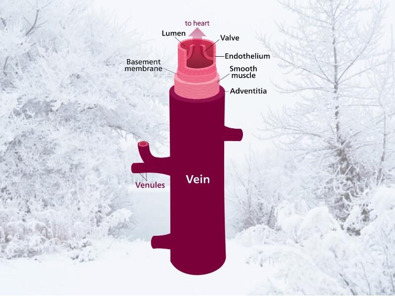 Uticaj zime na proširene vene