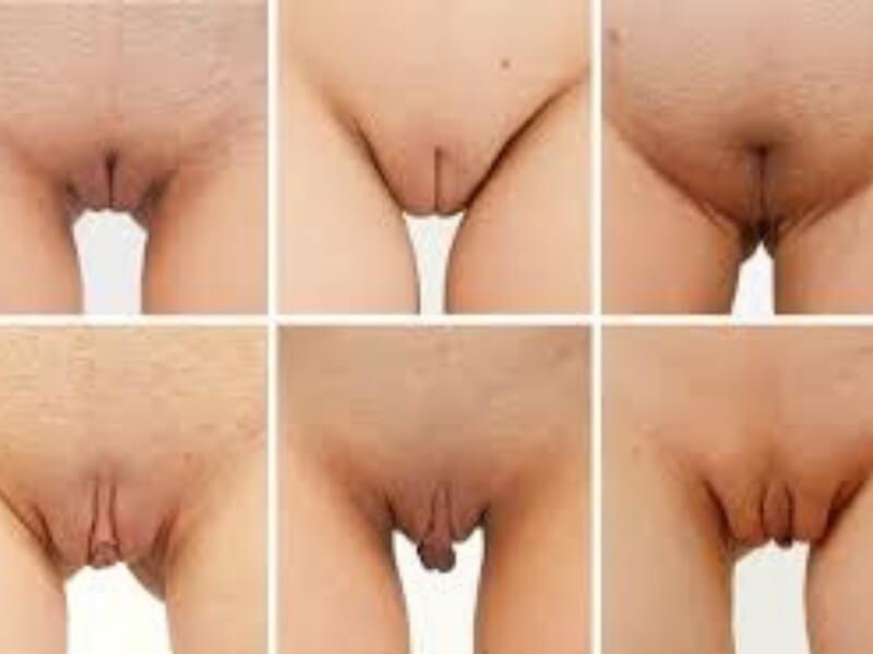Najsakriveniji deo ženskog tela ponekad zahteva da se izvrši estetska korekcija. Smanjivanje stidnih usana, podmlađivanje vagine i zatezanje venerinog brega su intervencije za koje se žene različitog godišnjeg doba sve češće opredeljuju.