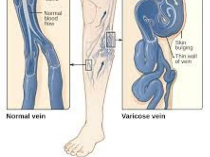 Proširene vene su dominantna bolest površnog venskog sistema. Oboljenja vena češće nastaju kod žena nego kod muškaraca.