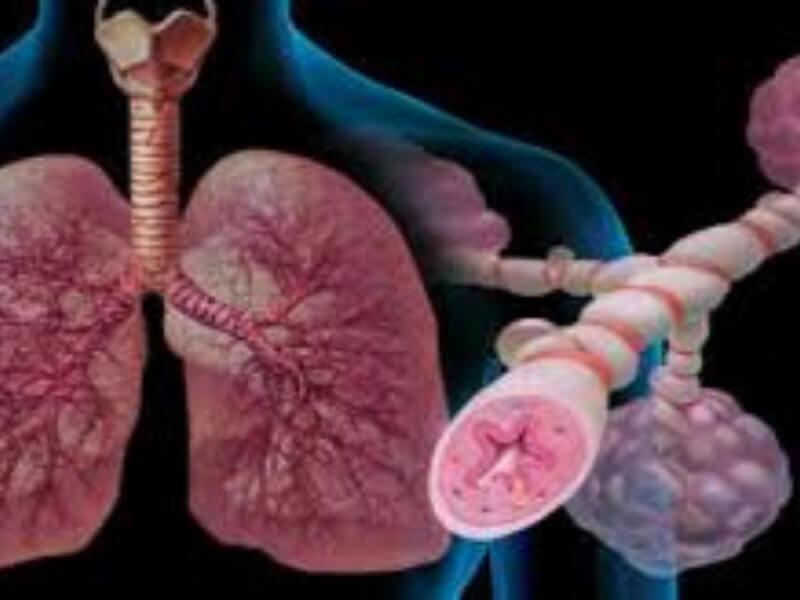 Astma je hronična opstruktivna zapaljenska bolest disajnih puteva koja uzrokuje probleme pri disanju. Karakterišu je jak imunološki odgovor i hronična upala traheobronhijalnog stabla.