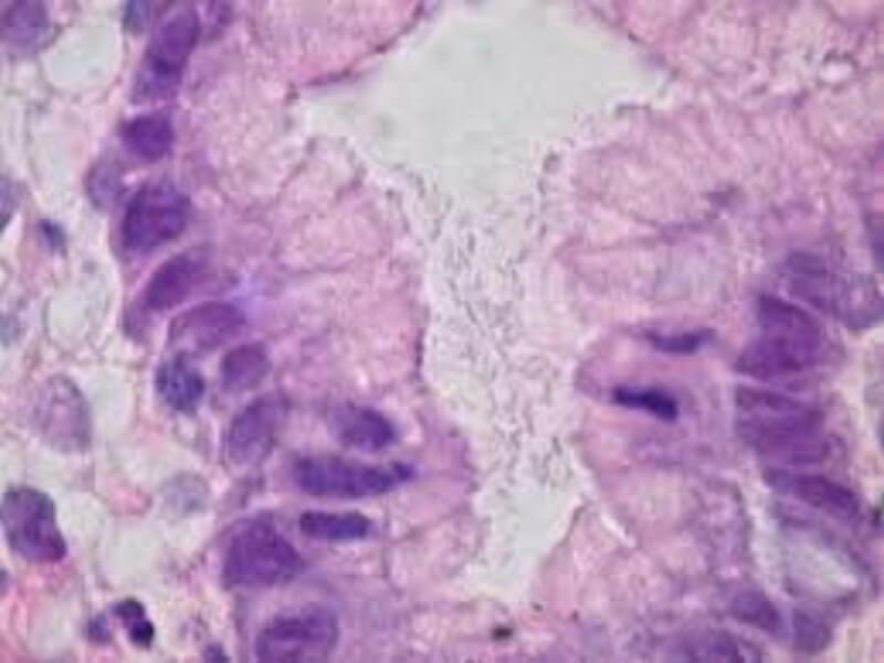 Heliko bakterija (Helicobacter pylori)