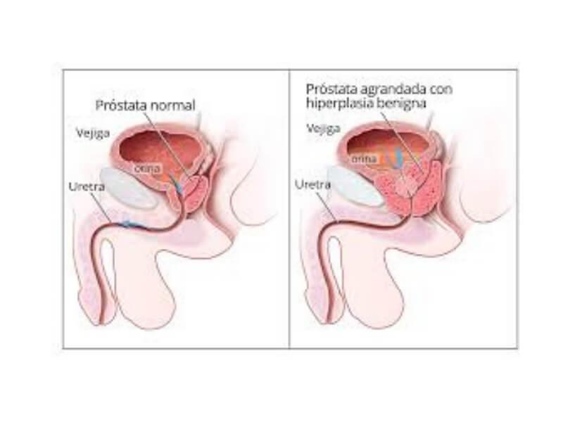 Beniptoma.gna hiperplazija prostate (BHP) je nemaligni, prekomerni rast ćelija prostate. Kako se hiperplazija razvija, tako se uretra (cev kojom urin izlazi iz bešike) postepeno sužava što dovodi do velikog broja neugodnih i uznemirujućih simptoma.