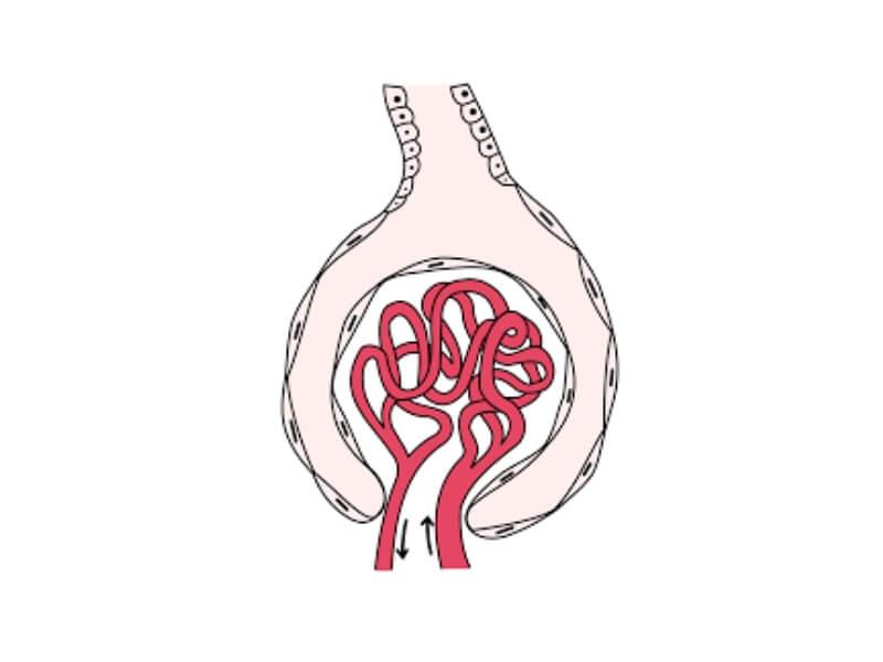 Glomerulonefritis (GN) je obostrano abakterijsko zapaljenje bubrega u kojem su zahvaćeni glomeruli , a propratno i druge strukture bubrega.