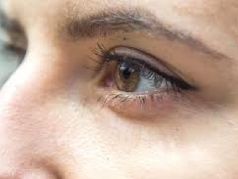 Entropium je uvrtanje ruba kapka prema očnoj jabučici, tako nastaje trichiasa - trepavice dođu u dodir sa površinom rožnjače (corneae) i vežnjače (conjunctive). Dolazi do osećaja stranog tela u oku, grebanja i suzenja.
